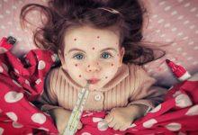 В городе Украинка и в Боярке зафиксированы вспышки кори